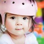 niño con casco de plagiocefalia