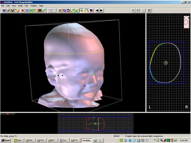 software cad cam plagiocefalisfalia